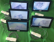 Digital Video Colposcope for Woman Care 10 or 7 Inch Medical Monitor Professional Camera for Inspection of Cervix