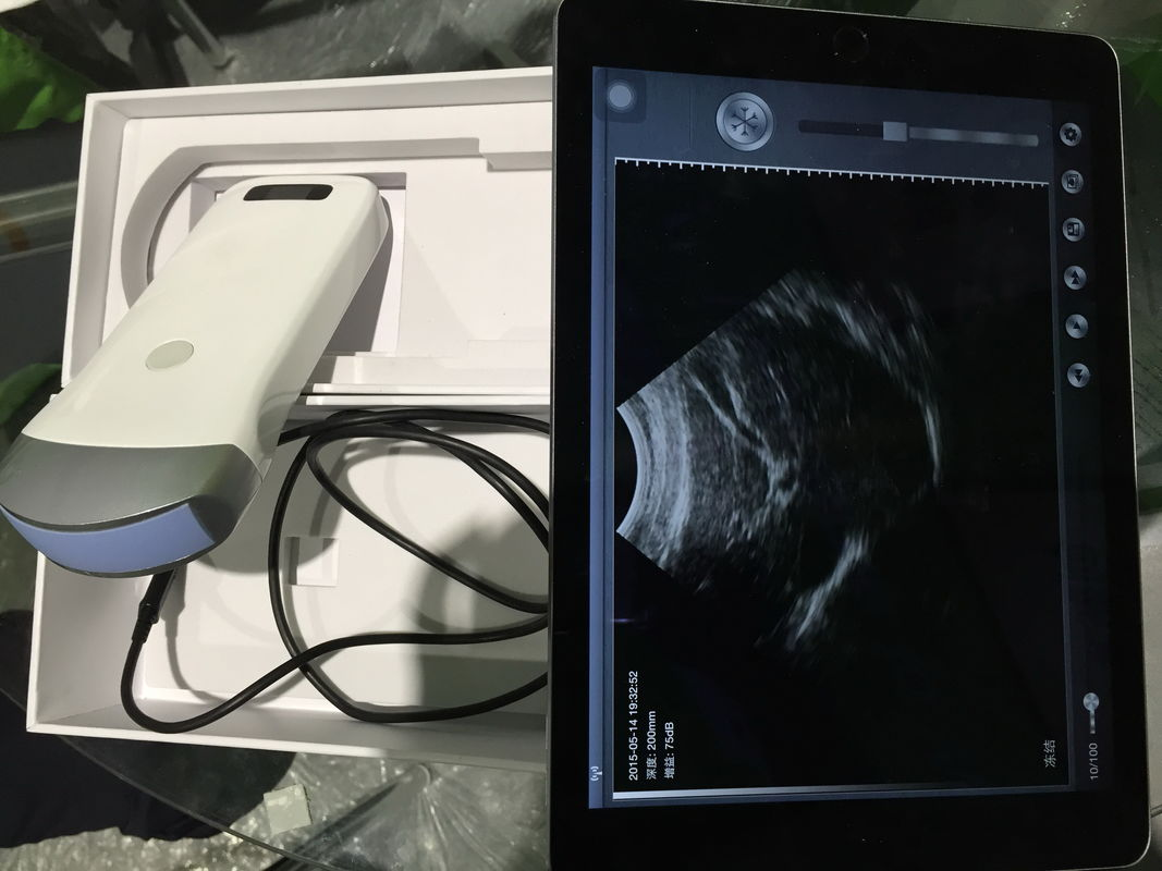 Portable Wireless Laptop Scanner Smart Ultrasound Array Probe