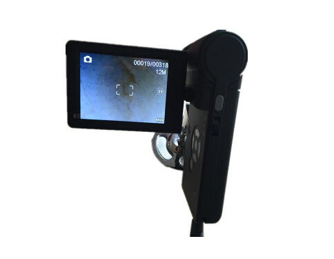 Small Video Dermatoscope Camera Skin And Hair Microscope High Image Resolution With 3 Inch LCD Rotable Screen