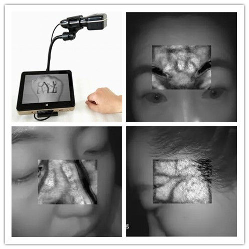 850nm Infrared Vein Finder Vein Viewer Version Instrument Suitable For Children Adult